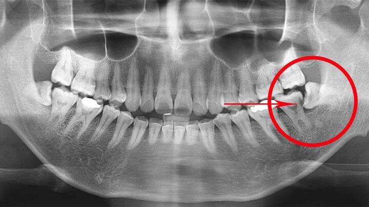 фото третьего моляра. Нижний зуб мудрости способствует разрушению соседнего зуба. Необходимо удалять.