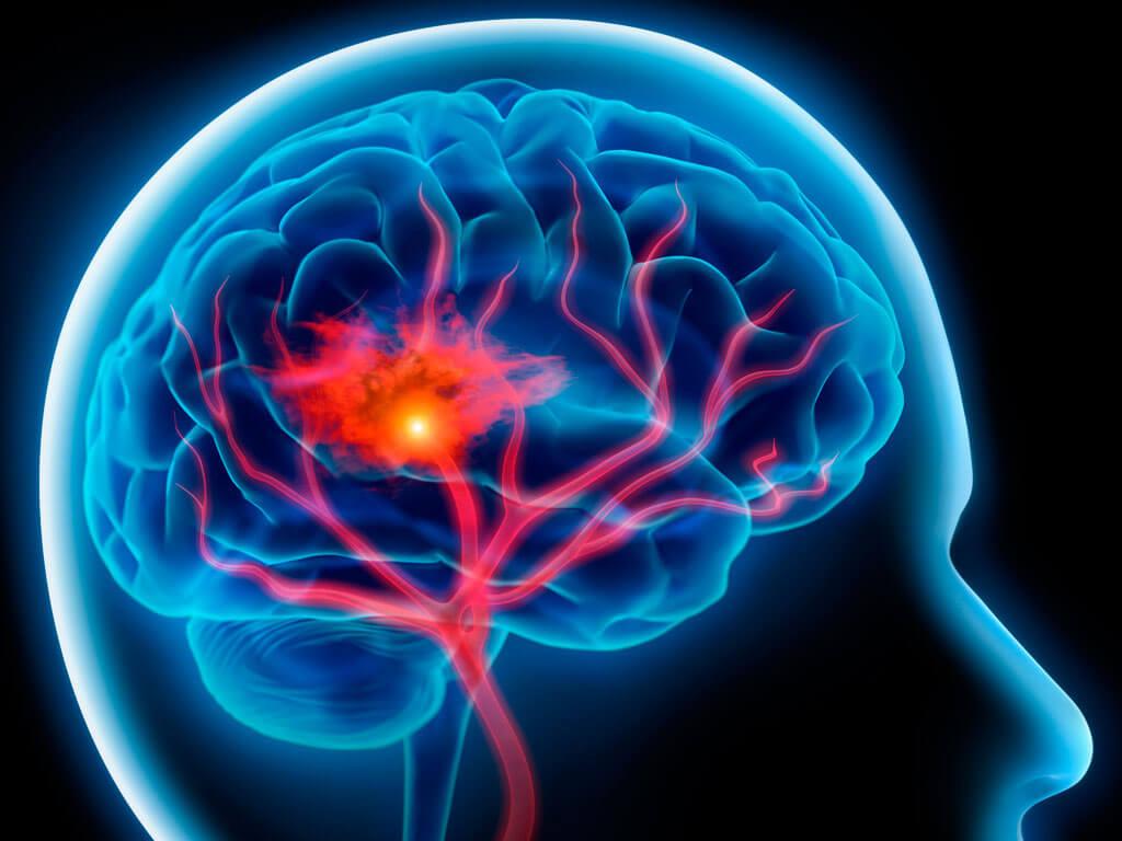 Инсульт симптомы первые признаки лечение