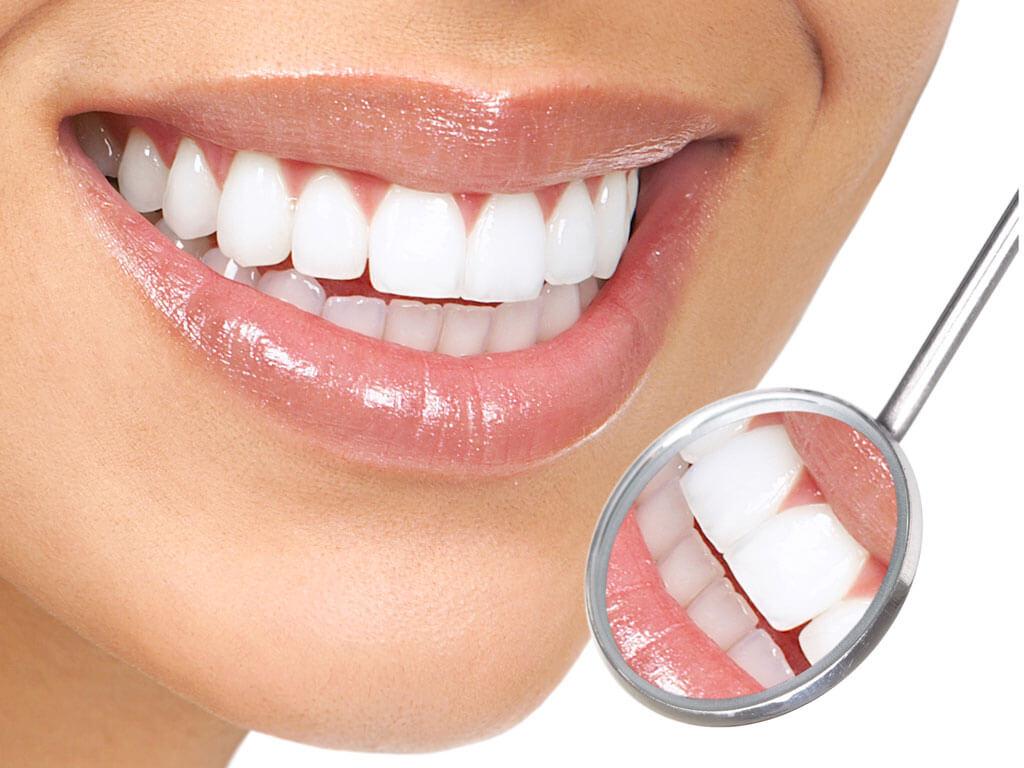 Как отбелить зубы в домашних условиях за один раз?
