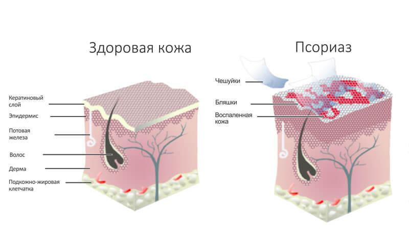 лечение псориаза дома