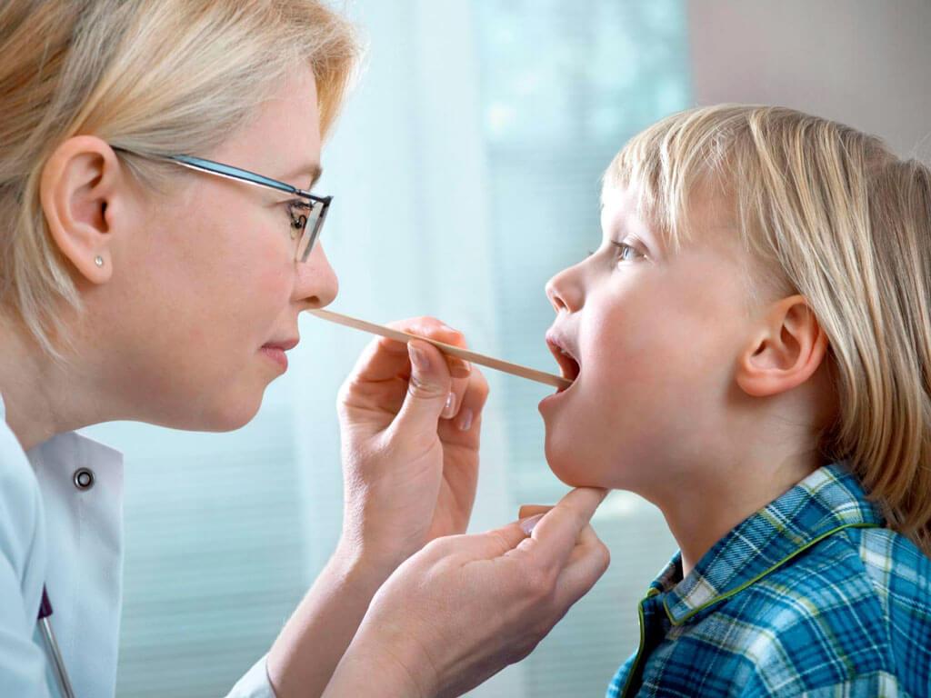 Острый фарингит – причины, симптомы и лечение